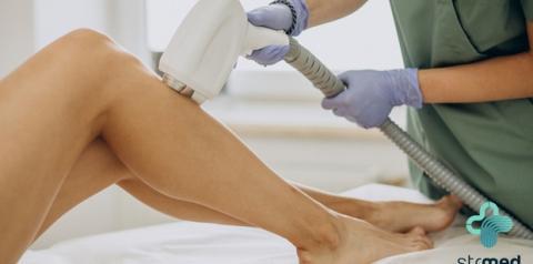 Depilação a laser: novas tecnologias  removem pelos sem dor