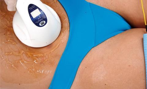 Terapia Combinada no tratamento da celulite e gordura localizada