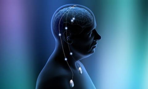Como funciona a cirurgia de estimulação cerebral profunda para epilepsia