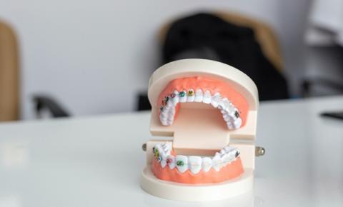 Problemas de oclusão dentária atingem mais da metade das crianças