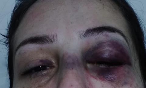 Campos: Mulher é agredida pelo pai do seu filho